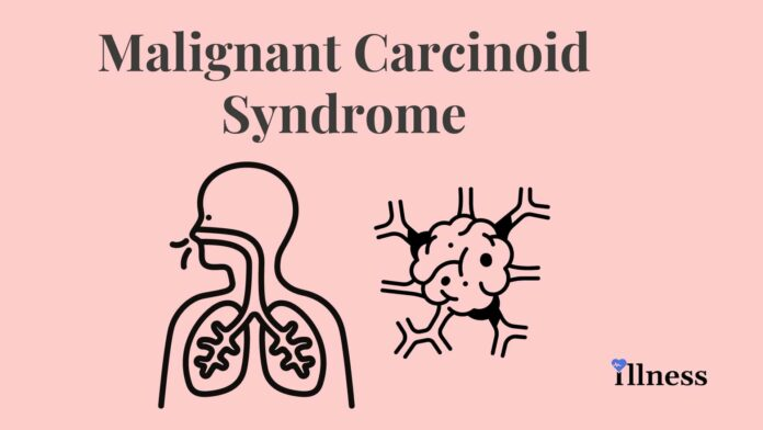 Malignant Carcinoid Syndrome